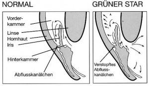 gruenerstar